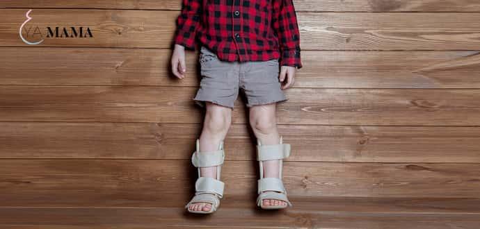 Ребенок с фиксаторами-ортезами