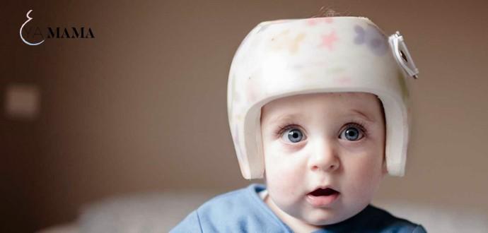 Малыш с ортопедиским шлемом на голове