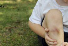 Ребенок сидит на траве, обхватив ногу, на которой появился синяк